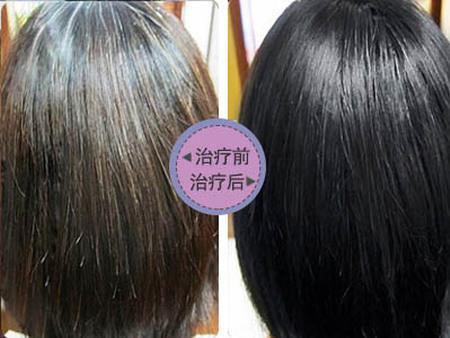 惠州白发转黑发,惠州白转黑发,惠州白发转黑,白发转黑发价格|行业资讯-广东青丝源发制品有限公司