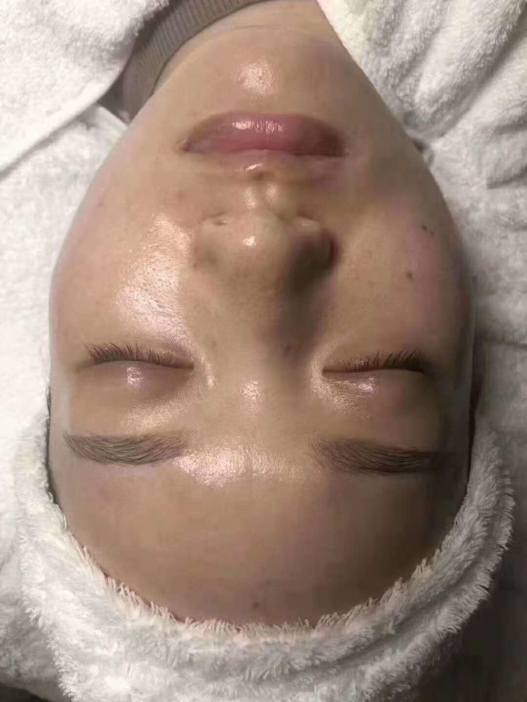 廣州具有口碑的面部清潔面部排毒推薦,改善皮膚暗黃面部排毒