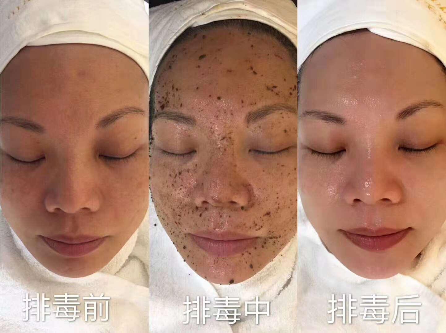 廣東服務周到的面部清潔面部排毒提供-北京祛斑怎樣改善