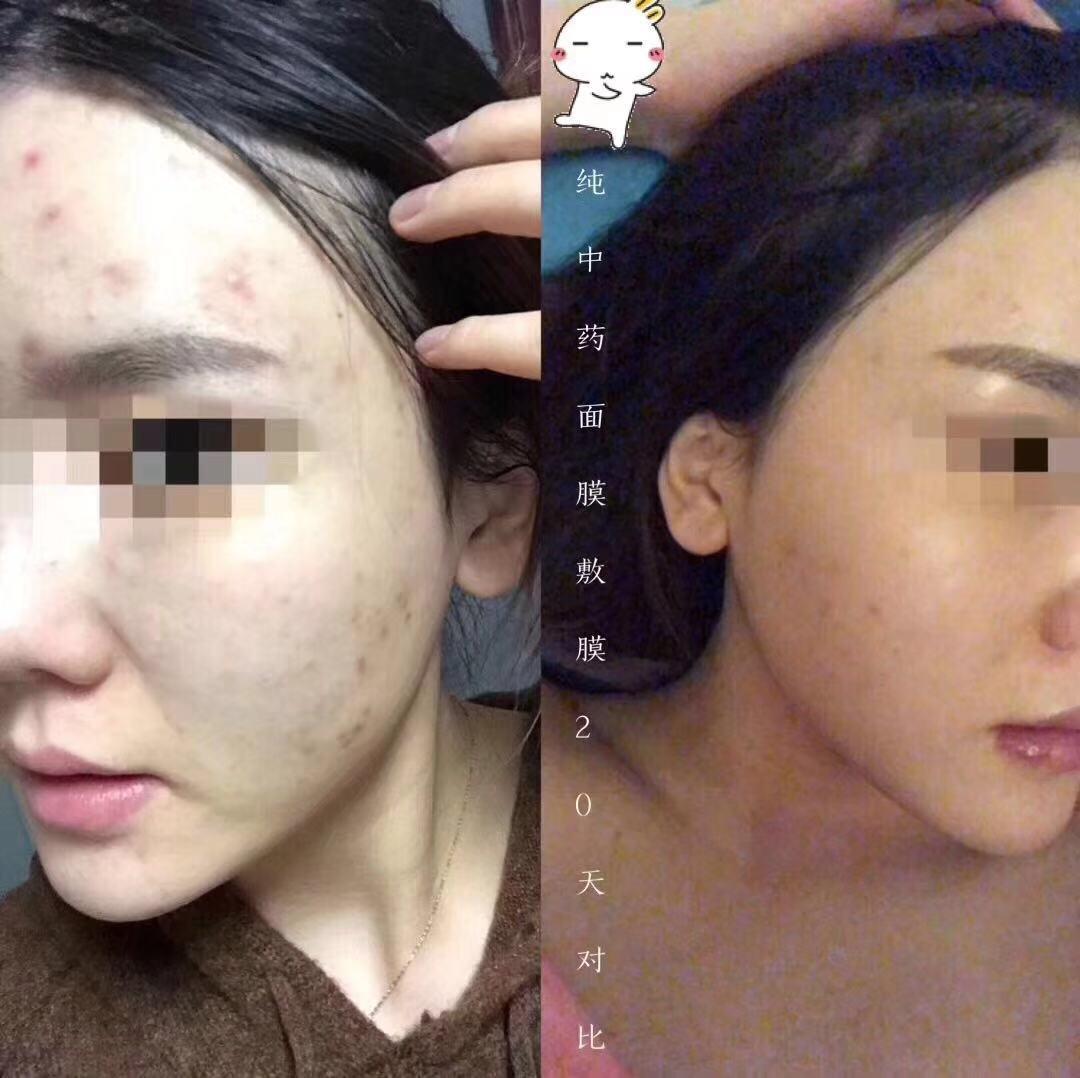祛痘印中药面膜粉加盟_广东不错的中药面膜品牌