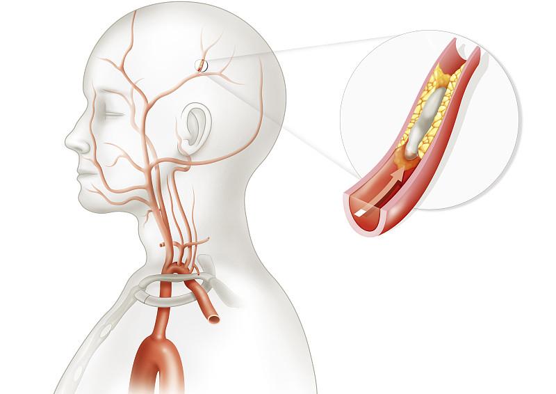 干细胞如何修复脑出血