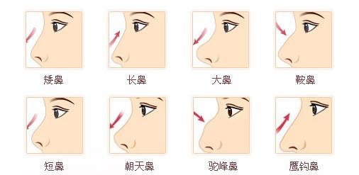 找专业的无痛假体隆鼻就到新乡华美整形,新乡长垣硅胶隆鼻