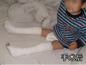 小儿足尖着地,足尖着地,足尖着地康复