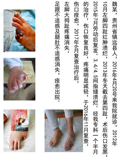 秦皇岛脉管炎康复医院