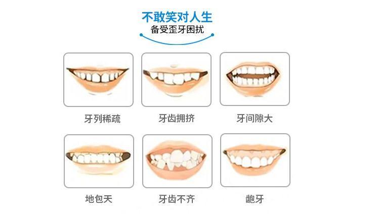 牙齒矯正多少錢-山東全套牙齒矯正推薦