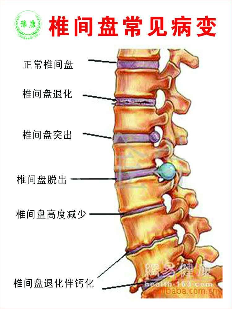 颈椎腰椎间盘复位机