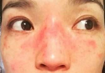 如何治疗日光性皮炎?