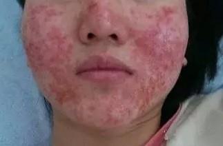 腾冲如何治疗日光性皮炎-云南靠谱的保山润华日光性皮炎治疗推荐