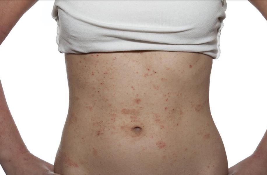 如何治療濕疹技術強不強-云南放心的保山潤華濕疹治療