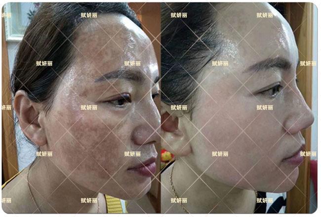 中药面膜皮肤治疗的好方法 美白祛痘祛皱年轻5-10岁