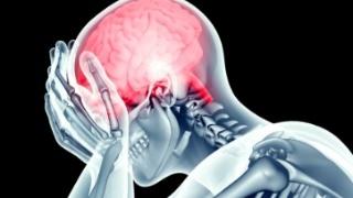 神经性头疼找哪家-哪里有提供资深的神经的检测