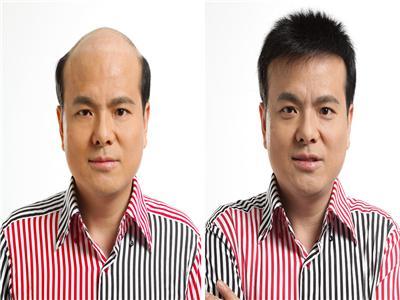 广州增发,隐形增发价格-广州市玛施美发有限公司
