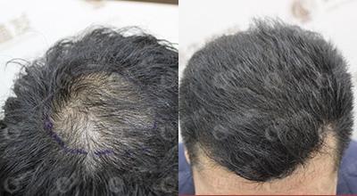 广州植发种发,种发价格-广州市玛施美发有限公司