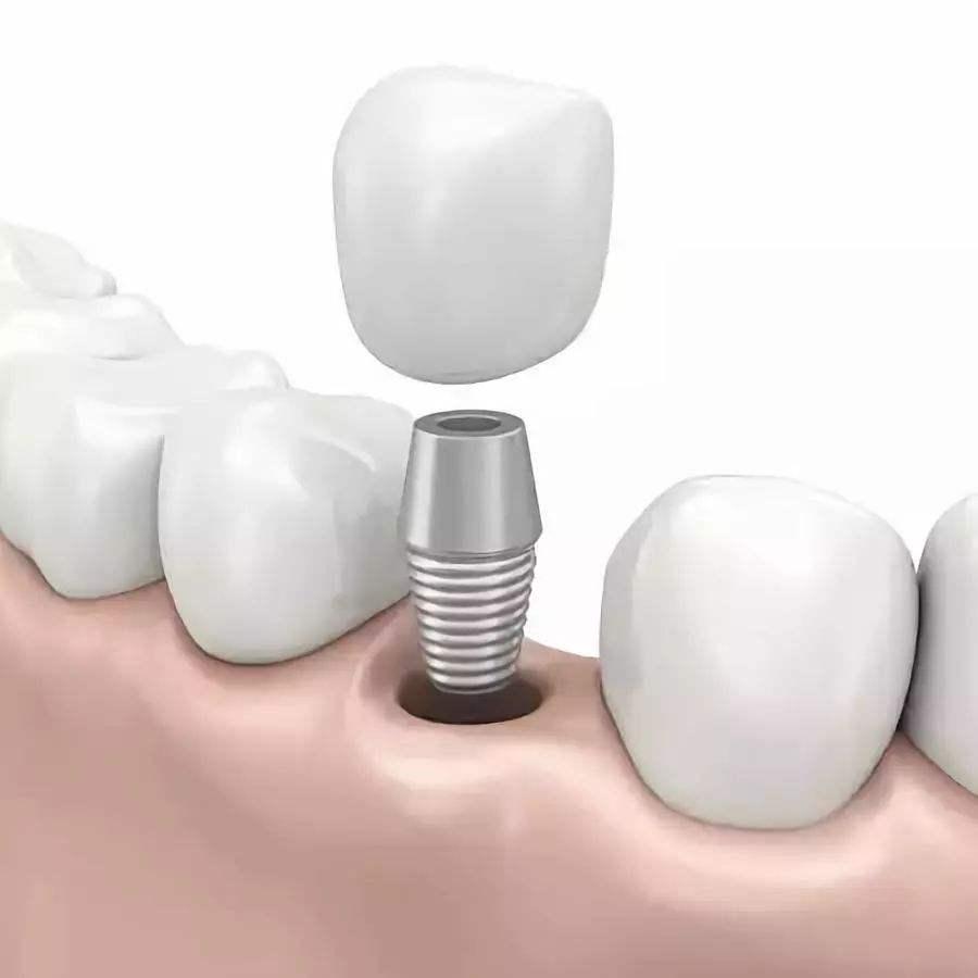 牙齿种植平台_专业可靠的牙齿种植推荐