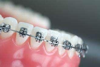 同城的矫正牙齿-牙齿种植找哪家好
