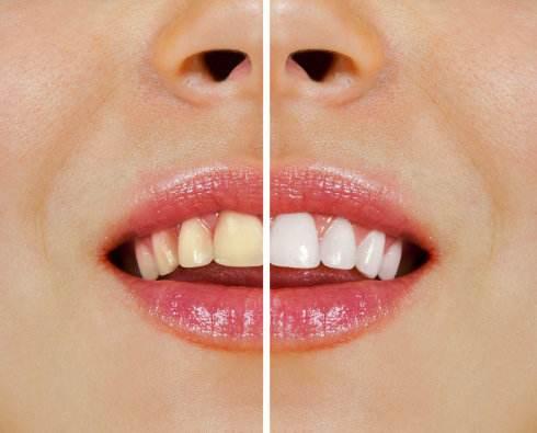 牙齿美白热线电话-上海市可信赖的牙齿美白