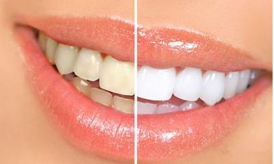 一级的牙齿美白_专业靠谱的牙齿美白推荐