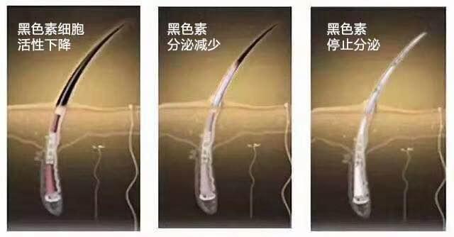 白发转黑穴位-广州供应质量好的慧丝莱头营养液护养套装