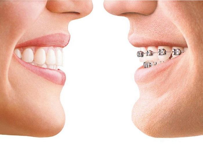 牙齿矫正找哪家-有口碑的牙齿矫正服务推荐