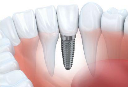 山西种植牙齿全过程-效果好的牙齿种植项目推荐