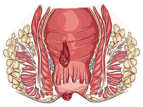 盤錦肛腸疾病就找彭程肛腸專科診所,專業治痔瘡及肛周膿腫等癥狀