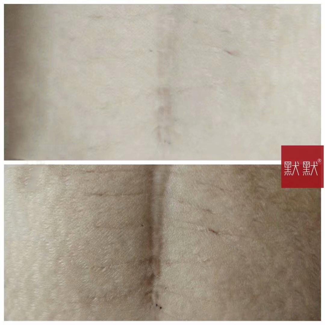 修复妊娠纹的默默无纹修护霜—默默化妆品