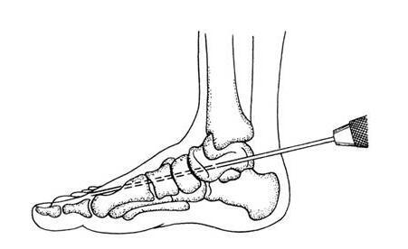 先天性垂直距骨康复,垂直距骨康复检查,垂直距骨康复