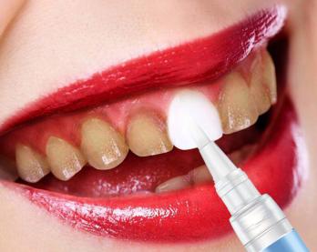 美牙經銷商|具有口碑的潔牙筆品牌