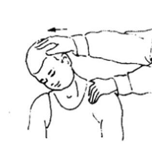 张家口先天性斜颈矫正康复-推荐邢台红十字
