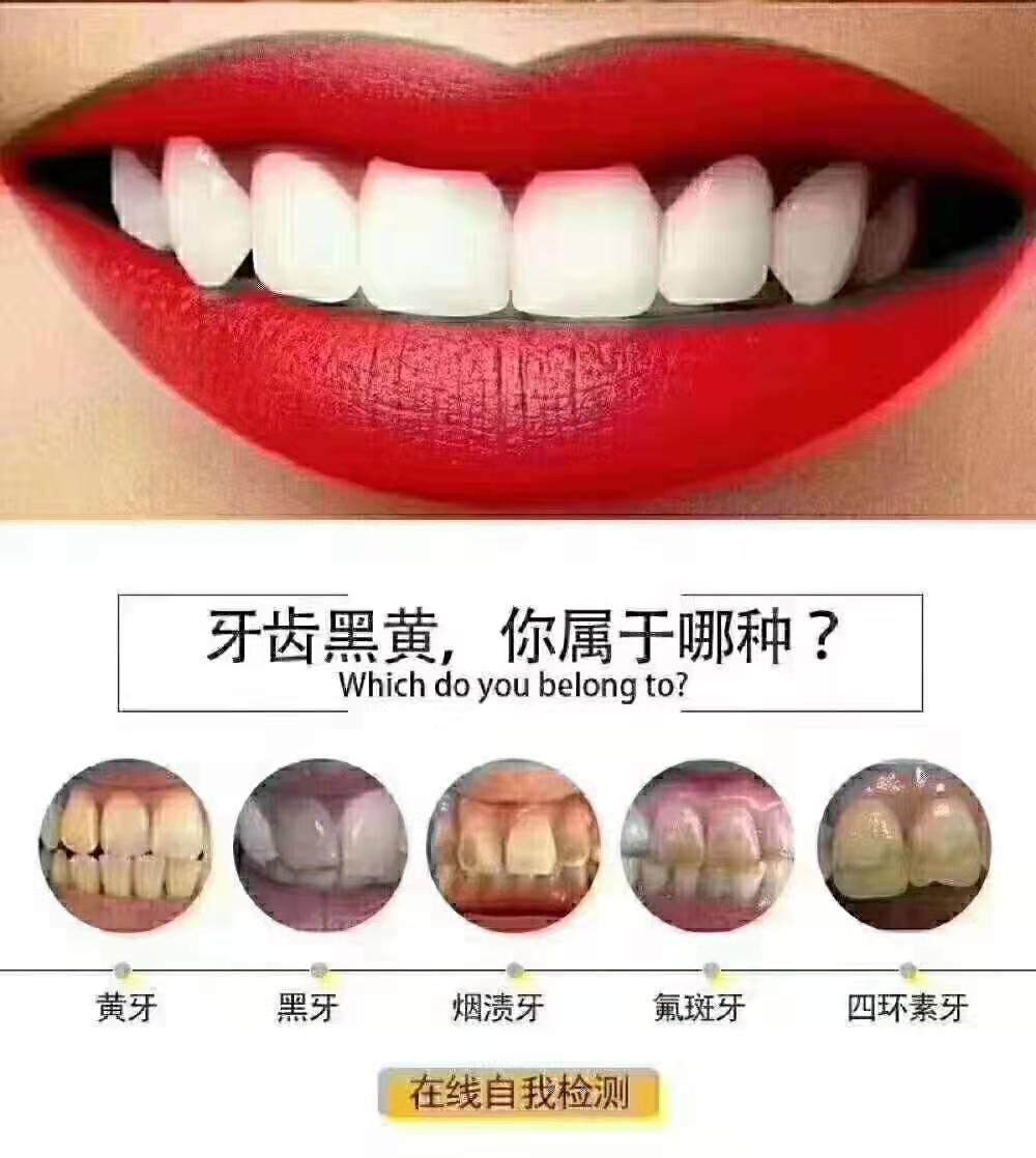 上海便攜式德國全瓷貼面-價位合理的美白牙貼在哪買