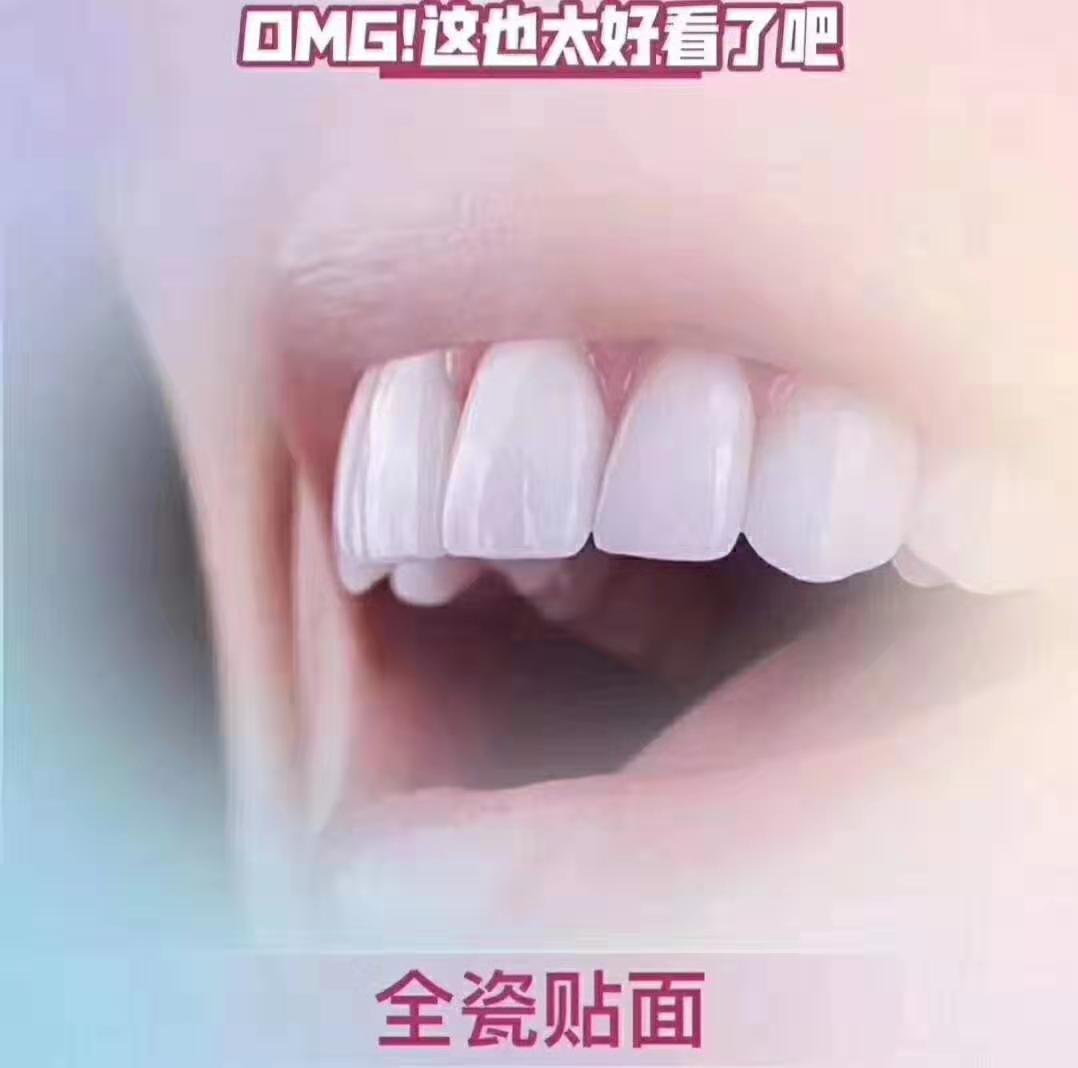 牙齿好处-优惠的美牙仪推荐