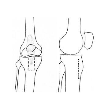 河北先天性胫骨假关节,胫骨假关节,先天性胫骨假关节