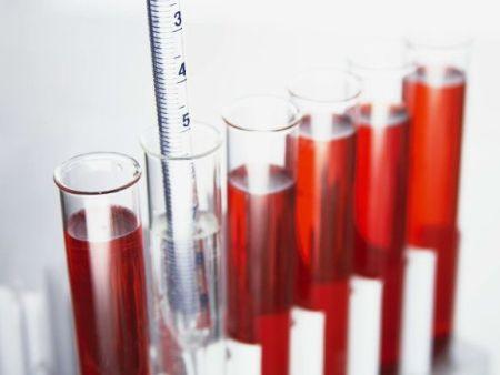 哪些方法来鉴定玻璃仪器质量?