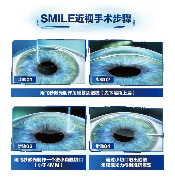 汕尾眼管家眼科-哪里有提供周到的視力矯正