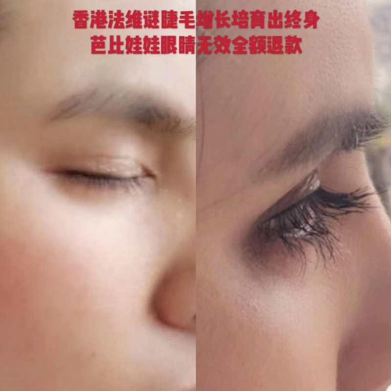 睫毛增长液代理-哪儿能买到专业的睫毛增长液