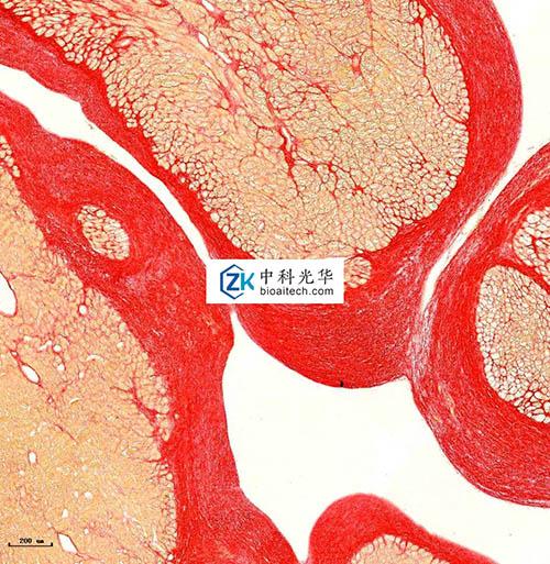 深圳肿瘤组织芯片-哈尔滨肿瘤组织芯片公司