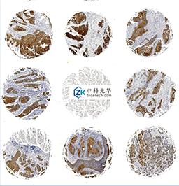 西安芯片免疫组化-深圳HE染色-深圳苏木素伊红染色