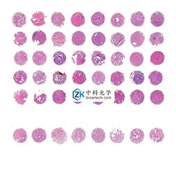 北京免疫荧光-石蜡切片价格-组织芯片厂家