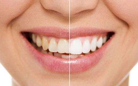 超薄全瓷牙齿贴面-航空港区牙贴面-河南港飞口腔