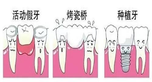 新郑市镶牙-口腔修复-缺牙修复