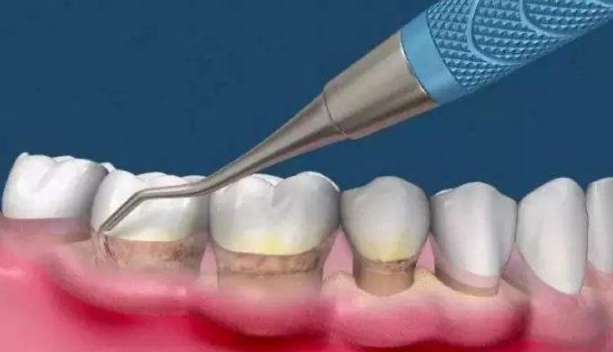牙周治疗什么价格-牙周治疗费用大概多少